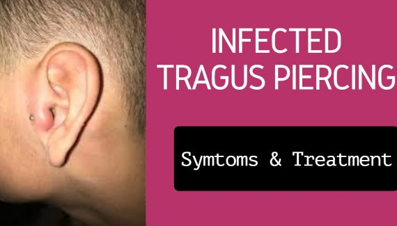 Infected Tragus Piercing